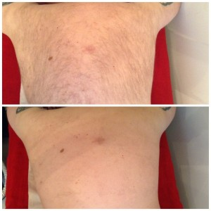 Cheshire Aesthetic Clinic | Inch Loss Skin Care and Hair Removal | IPL Laser Hair Removal