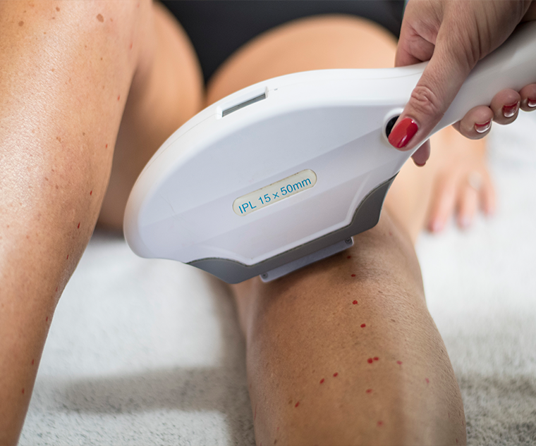Cheshire Aesthetic Clinic | Inch Loss Skin Care and Hair Removal | Laser Hair Removal