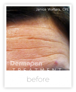 Dermapen - The LA Lift. Put off that facelift! Fresher, smoother skin in your lunchhour. Erase your skins past, contact Emma Brimson on 01244 915603.