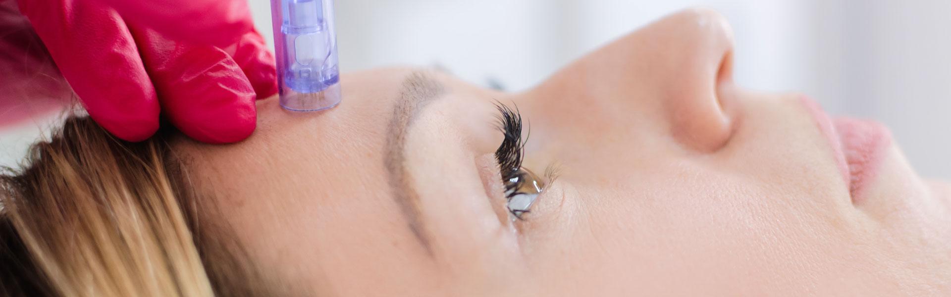 Cheshire Aesthetic Clinic | IPL Dermapen Skin Care | Dermapen