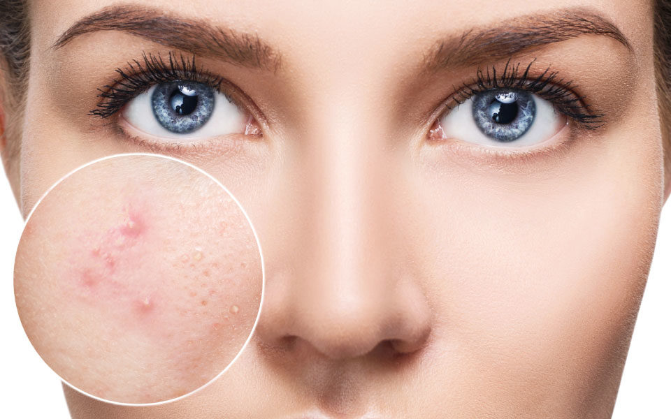 Cheshire Aesthetic Clinic | Inch Loss, Skin Care and Hair Removal | Acne